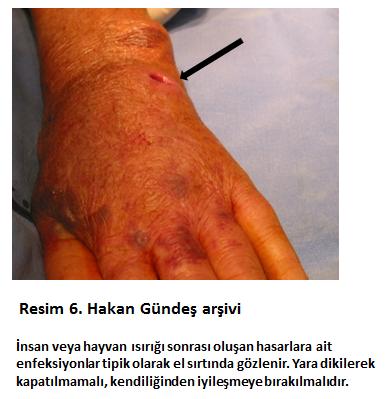 el enfeksiyonlari prof dr hakan gundes el cerrahisi uzmani