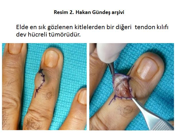 el-tumoru-operasyon