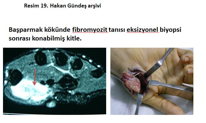 fibramatoz-tumorler