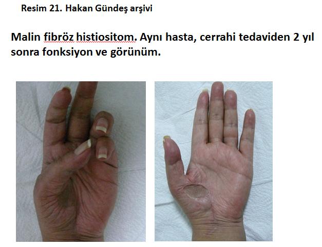 kotu-huylu-tumorler