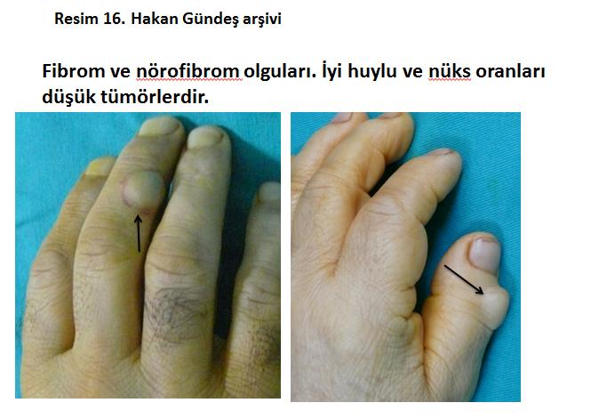 nurofibrom