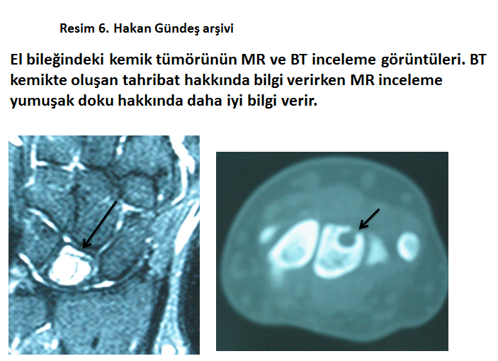 radyolojik-tetkikler