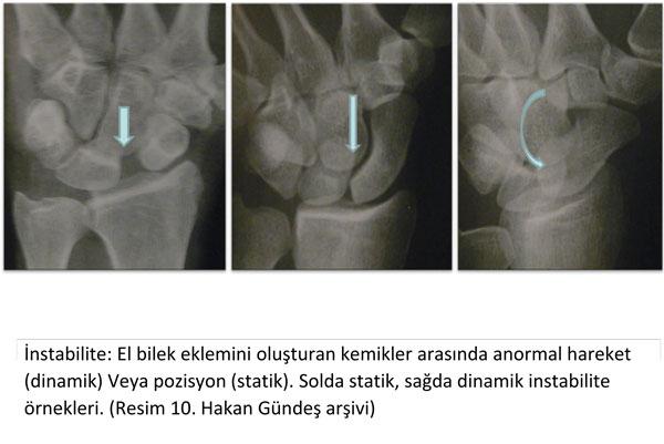 el-bilek-a-r-s-instabilite-10