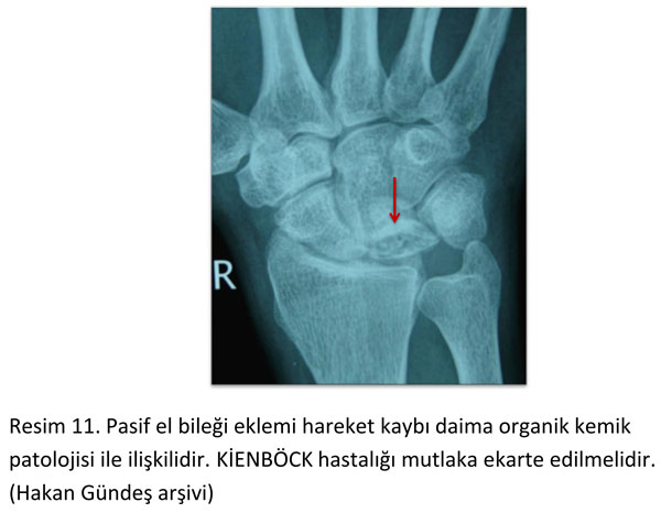 el-bilek-a-r-s-instabilite-11