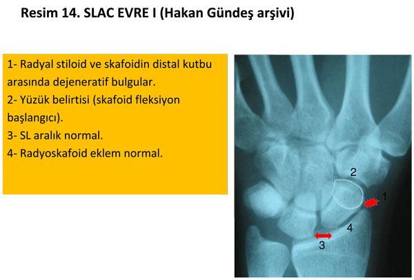 el-bilek-a-r-s-instabilite-14