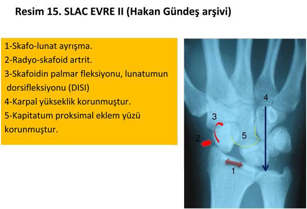 el-bilek-a-r-s-instabilite-15