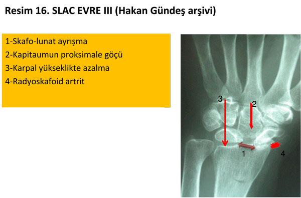 el-bilek-a-r-s-instabilite-16