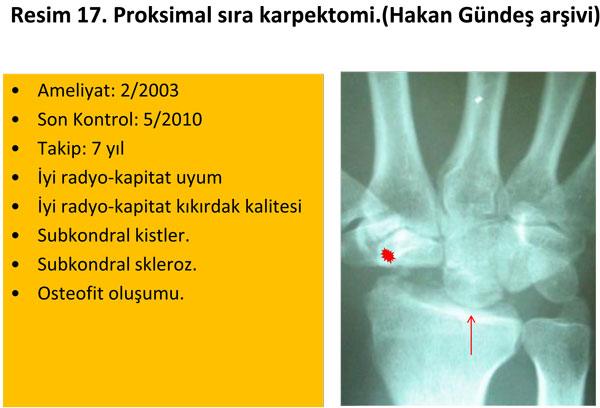 el-bilek-a-r-s-instabilite-17