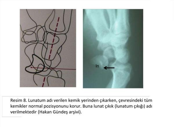 el-bilek-a-r-s-instabilite-8
