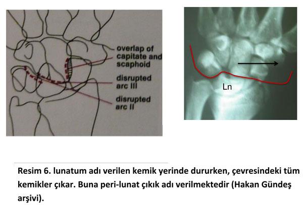el-bilek-instabilite1